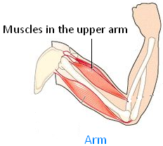 Picture of our Arm